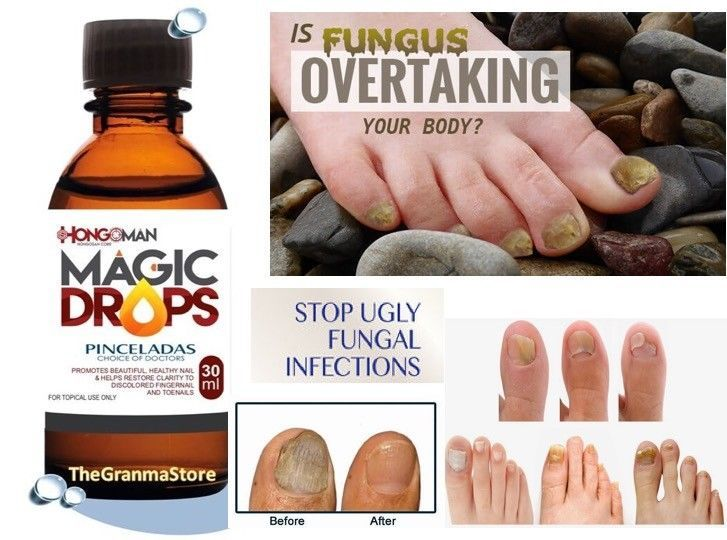 NEW Magic drops liquid of Hongosanmore known as the lacquer remover and instant drying to eliminate the fungus in the nails quickly. 100 % oil natural... #athletes #foot #fungi #nail #fungus #toenail #fungal #treatment #extra #strength #anti