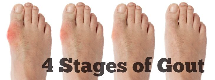 The Four Stages of Gout