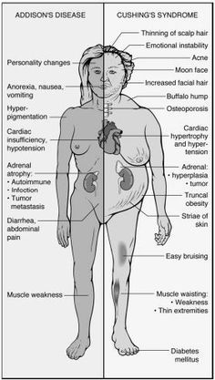 ADDISON'S DISEASE CUSHING'S DISEASE Definition Hyposecretion of adrenocortical hormones leading to: Metabolic disturbances (sugar) Fluid and electrolyte imbalances (salt) Deficiency of neuromuscular function (salt and sex) Hypersecretion of adrenocortical hormone Predisposing Factors Atrophy of the Adrenal gland Fungal infectionsRead more