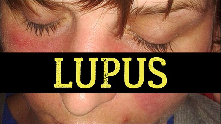 Lupus – Causes and Symptoms & Natural Ways To Manage It