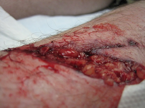 how to tell if stitches are healing properly