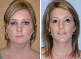 http://www.liposuctionindubai.com/areas-of-liposuction/chin-liposuction/