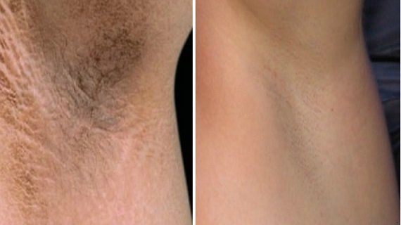 One week challenge to Get rid of dark under arms using only one ingredient at home !!