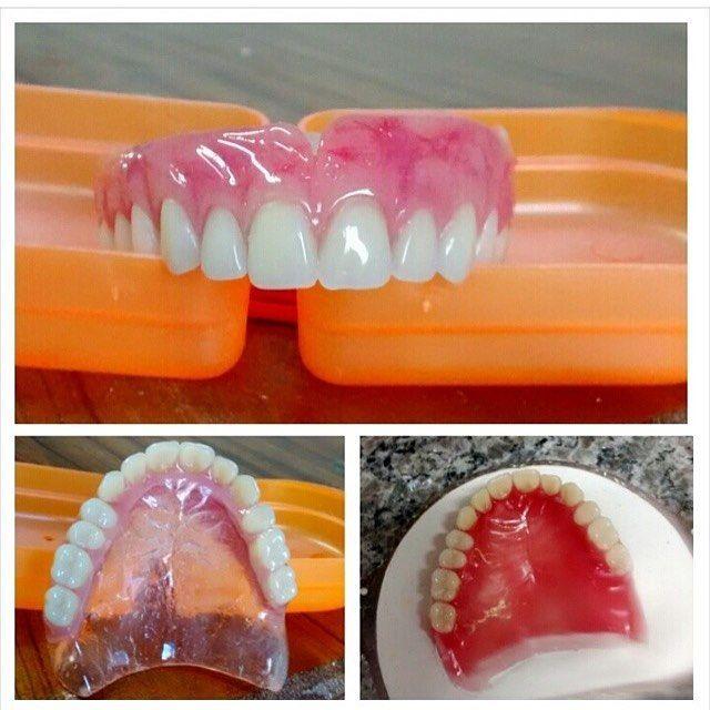 Um ótimo dia a todos. Protese total STG Agende por email uma visita em seu consultório. Saquarema Bacaxá Araruama e região. trabalhamos com diversos tipos de próteses. flexíveis acrílicas caracterizada no sistema STG PPr Com grampo estético laboratórioleandroosorio@gmail.com #bomdiaa #saquarema #araruama #denist #dental #dentista #dentsply #dentures #dentalart #dentallab #dentistry #denstistry #dentalgram #dentallife #Dienteisosit #dentallabtechs #DentalWitakril #dentallaboratory…