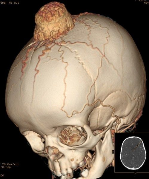 249 best images about head & neck on pinterest | head and neck, Human Body