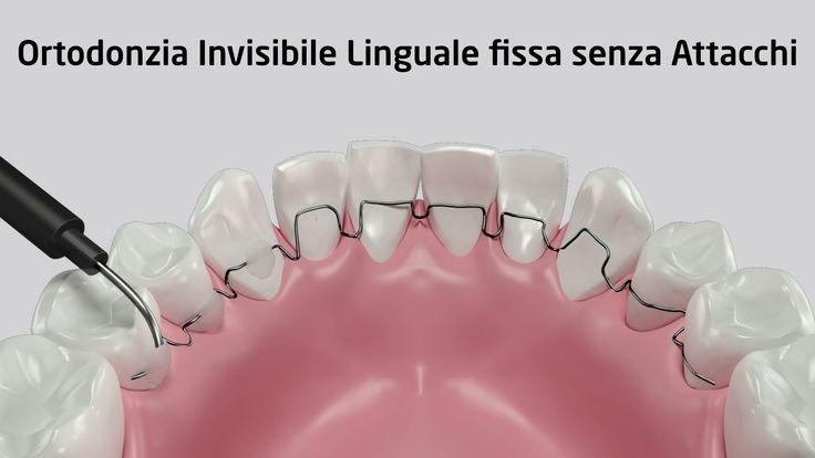 Ortodonzia Invisibile Linguale fissa senza Attacchi - Invisible bracketl...