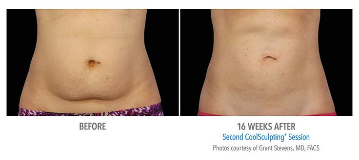 CoolSculpting Results - Stomach