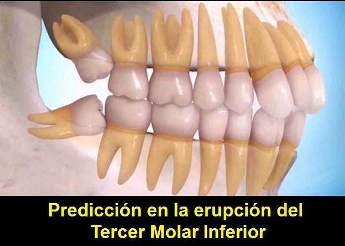 Predicción en la erupción del Tercer Molar Inferior   OVI Dental
