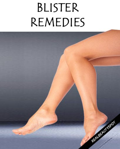 Remedies for blister free feet