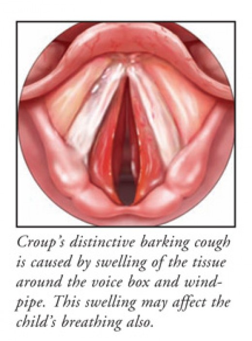 Croup Throat 96