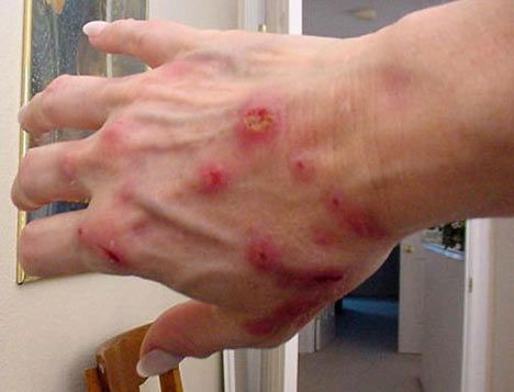 This picture matters to me because with the disease going on around it might infect other people and the rate of this infection might increases. I have saw some people who have those rashes all over their body and they wouldn't be able to get a good rest. They would always scratch themselves because it is too itching and they couldn't stop it.