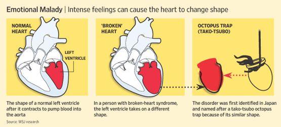 stress-induced cardiomyopathy i.e. broken heart syndrome