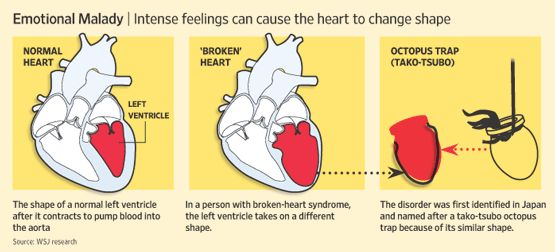 stress-induced cardiomyopathy i.e. broken heart syndrome