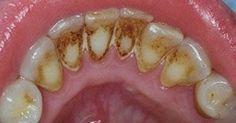 Όλοι γνωρίζουμε ότι, όταν πρόκειται για την αφαίρεση της πλάκας, ο οδοντίατρος θα κάνει τη δουλειά τέλεια. Ωστόσο, υπάρχουν πολλές φυσικές συνταγές μέσω τω