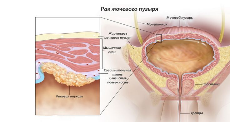 жир в нижней части живота