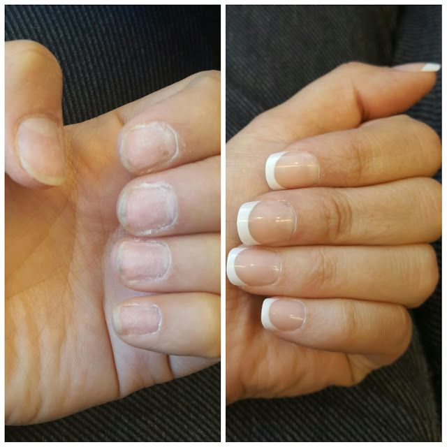 Before And After. Get Lasting French Tipped Nails For
