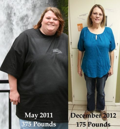 What 200 pounds lost looks like - the comparison photo