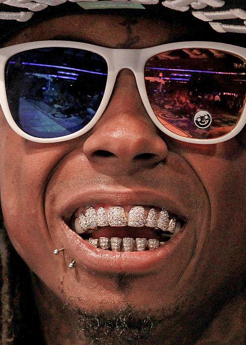 Opinion you Lil wayne teeth