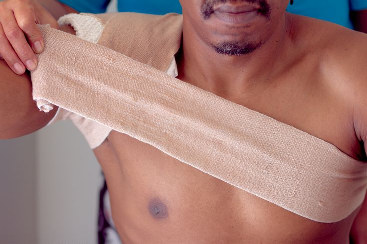 How to Make a Shoulder Ice Pack