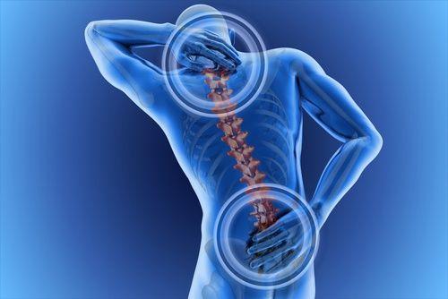 La edad, genética, riesgos laborales, el sedentarismo, sobrepeso, la mala postura y fumar son unas de las posibles causas del dolor de espalda. Adicional