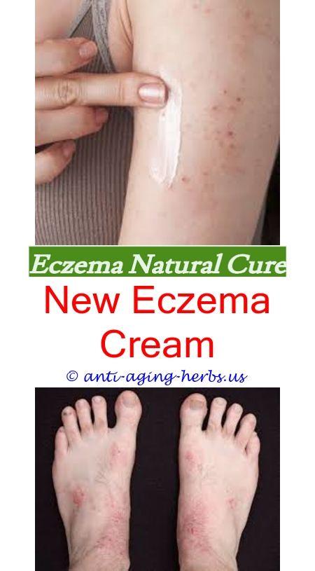 Eczema in vagina