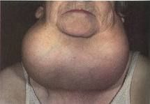 #bocio Consiste en el aumento de volumen de una parte o de toda la tiroides. En ocasiones, el bocio aumenta la producción de tiroxina, produciéndose el bocio exoftálmico, que se caracteriza por ojos saltones, temblores, inestabilidad emotiva y adelgazamiento.
