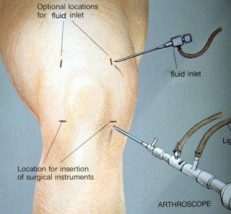 Meniscus Tear Symptoms   meniscus tear knee symptoms and treatment