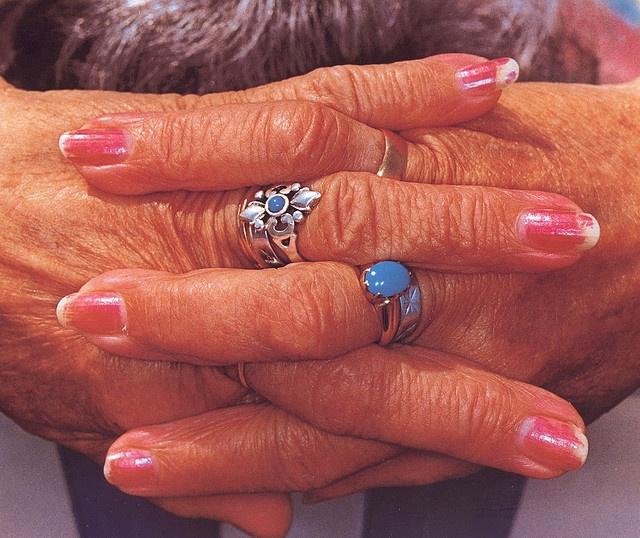 Hands by Martin Parr