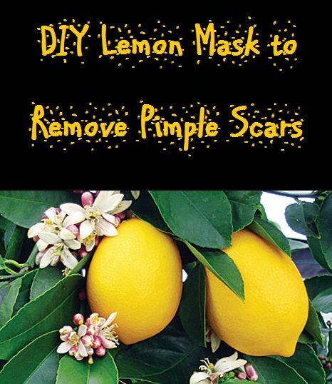#Lemon is a natural bleach. Vitamin C in lemon helps in rebuilding #collagen. When you use lime juice on your acne scars, the spots get lighter day by day. How to use lemon for acne scars • Take a fresh lemon and squeeze out its juice. Apply this juice directly on your scars with finger tips or a cotton ball... http://beautytips.givingtoyou.com/diy-lemon-mask-to-remove-pimple-scars
