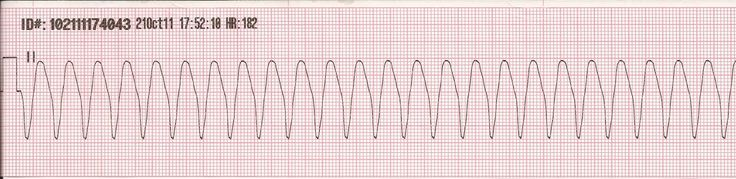 bklynmed:  Ventricular Tachycardia (VT) often results in haemodynamic compromise due to minimal ventricular filling time and the absence of atrial kick. VT also has a tendency to transition into ventricular fibrillation. The causes of VT can include myocardial ischaemia, cardiac drug toxicity and electrolyte imbalance. Pulseless VT requires urgent defibrillation.  Regularity: Regular, but sometimes can be slightly irregular. Rate: 100-250bpm P waves: None, or not associated with the QRS…