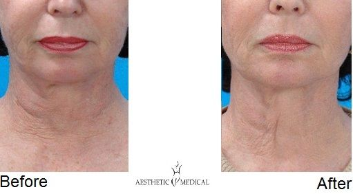 #body contouring #skin tightening #lipolaser