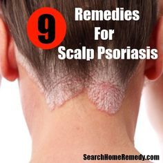 Search Home Remedy - http://www.searchhomeremedy.com/home-remedies-for-scalp-psoriasis/