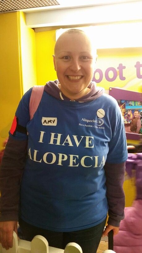 Met this amazing lady today from alopecia UK with a group of families with a member of the family suffering with alopecia. What an amazing bunch of people very moving to see t-shirt with I have alopecia & I love someone with alopecia.