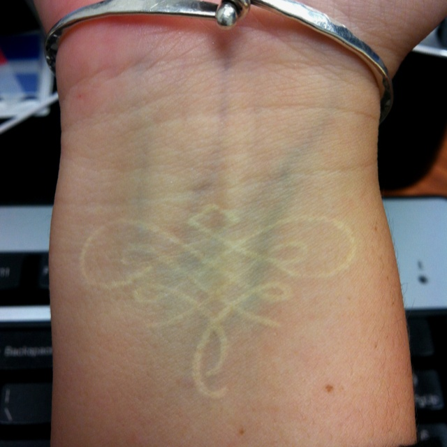 White ink tattoo ink pinterest white ink tattoos for Raised tattoo after healing