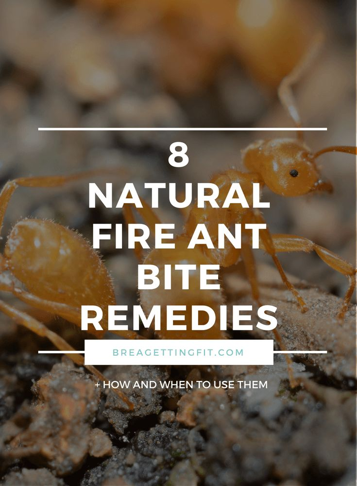 Best Natural Remedies For Fire Ants