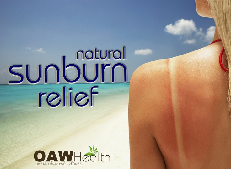 13 natural sunburn relief remedies to help with the frustration and pain of sunburn.