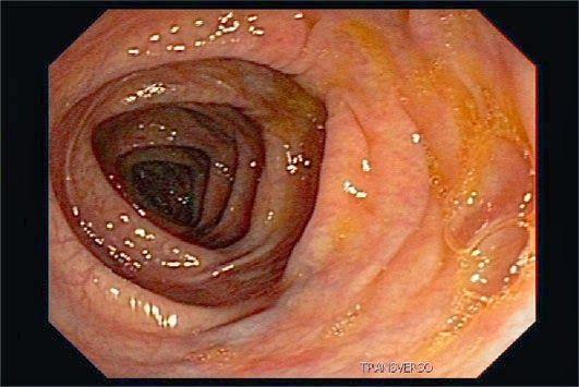 Fedor de uma boca por causa de parasitas