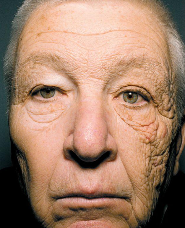 Astonishing Proof Of Sun Damage On One Face