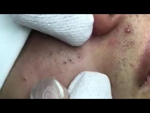 Acne, Blackheads And Pimples Removal Cystic Acne Treatment With Relaxing Music #214 Stubborn Milia Extractions with Dr Pimple Popper Pore of Winer- 4 extraction methods explained My Best Dilated Pores of Winer: A Dr Pimple Popper Compilation Extracting Big Blackheads on the Back: A popaholic...  https://www.crazytech.eu.org/acne-blackheads-and-pimples-removal-cystic-acne-treatment-with-relaxing-music-214/