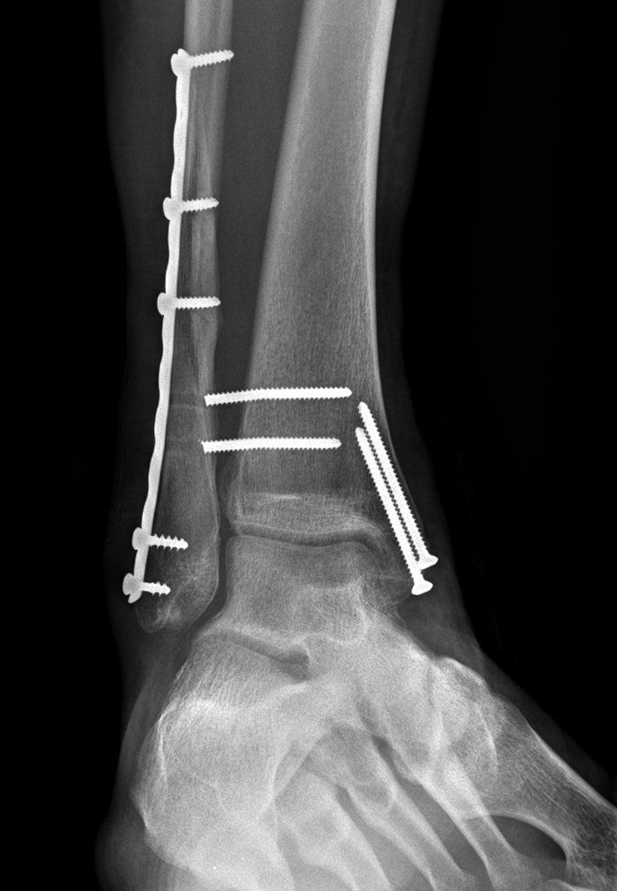 fractured ankle | ... fracture of the fibula  transverse fracture of the medial malleolus