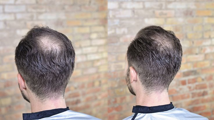 Before and after photo - how to cut and style balding or thinning hair to appear thicker