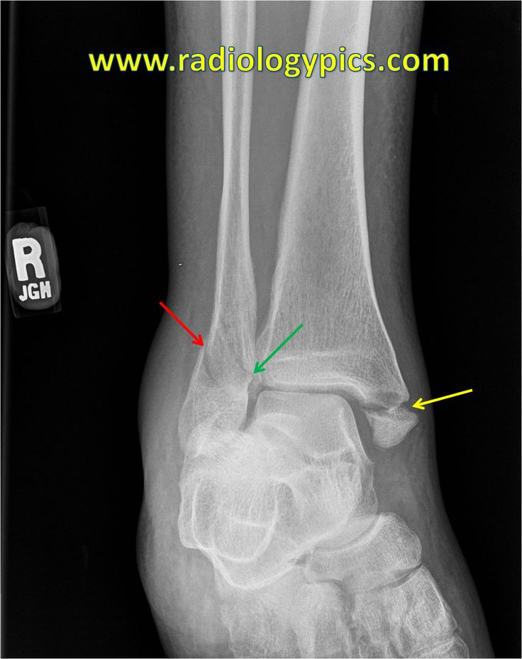 Lauge Hansen SER IV - Ankle mortise view shows fracture of ...