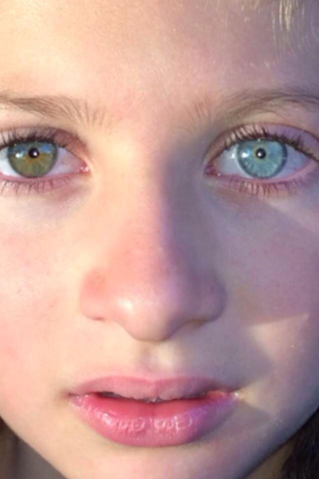 Heterochromia Gallery