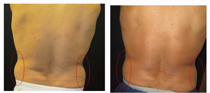 Coolsculpting. See our before and after photos of Coolsculpting for #Men. Non-Invasive Fat Reduction. Lose 20-30% of Stubborn Fat. Real Patient. Real Results! Call (267) 388-0300 For Free Consultation. Located in Horsham, PA. In Montgomery County, near Bucks County, PA. Located in Horsham, near Doylestown, Warrington, Jamison, Furlong, Warminster, Southampton, Huntigndon Valley.