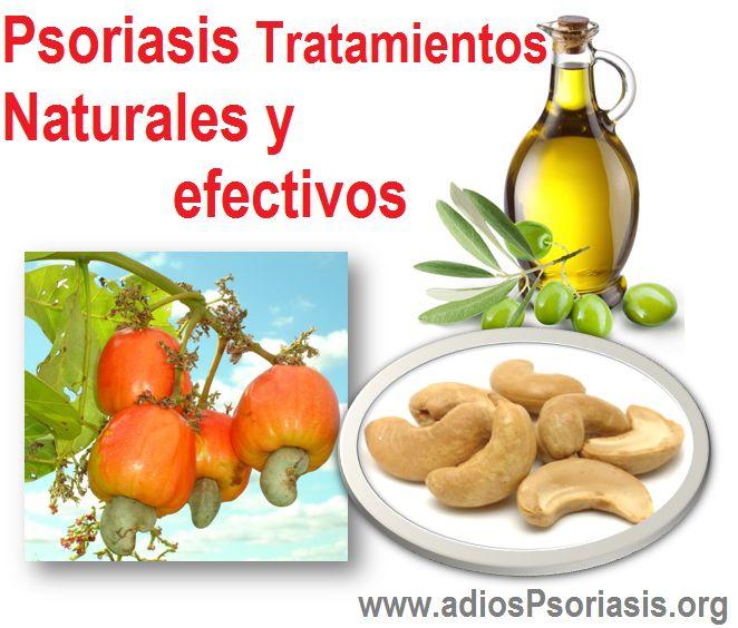 Si pasa la psoriasis en contacto con el enfermo