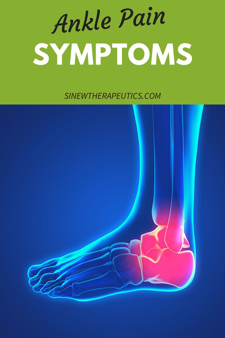 Sprains are graded by the amount of damage to the ligament. A grade one sprain involves stretching and some possible microscopic tearing of the ligament fibers. Learn more about ankle pain symptoms at SinewTherapeutics.com