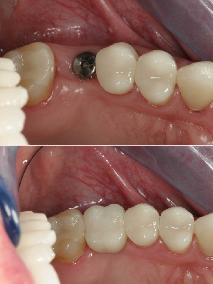 Dental Implants With Zirconia Crown Dental Implants