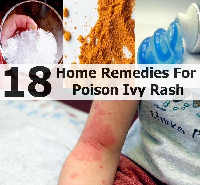 Top 18 Home Remedies For Poison Ivy Rash