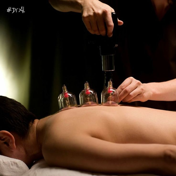 Cupping is a therapeutic method, which has been used for thousands of years, and carried out in various cultures, due to its proven effects.  The benefits of cupping therapy As a result of cupping therapy, blood supply is increased, and old, previously stagnant blood begins to circulate. In this way, toxic waste substances are dissolved, and circulated through the blood, where they can easily be excreted from the body. Considering this, it is important to drink plenty of fluid following the…