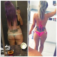Holly Hagan posts 'before and after' shots of her bottom to Instagram #dailymail
